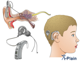the complications related to the cochlear implant Bring the cochlear implant  the risk of meningitis was approximately 1 in 1000 cases and likely related to  complications specific to cochlear.