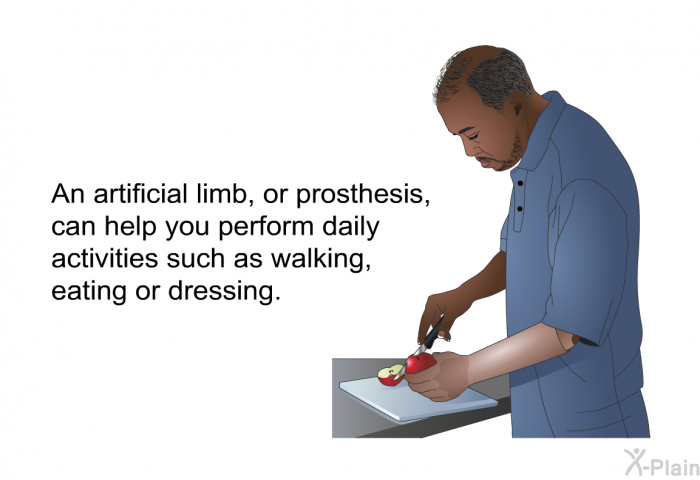 An artificial limb, or prosthesis, can help you perform daily activities such as walking, eating or dressing.