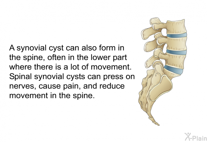A synovial cyst can also form in the spine, often in the lower part where there is a lot of movement. Spinal synovial cysts can press on nerves, cause pain, and reduce movement in the spine.