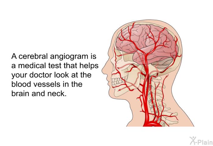 PatEdu.com : Cerebral Angiogram
