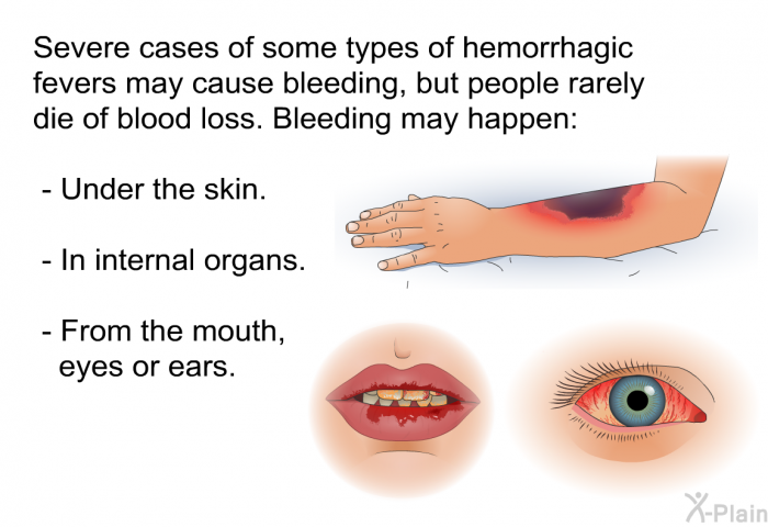 Severe cases of some types of hemorrhagic fevers may cause bleeding, but people rarely die of blood loss. Bleeding may happen:  Under the skin. In internal organs. From the mouth, eyes or ears.