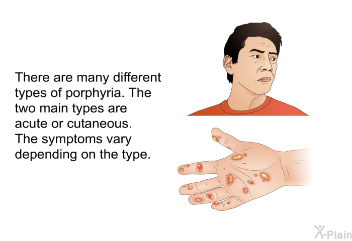 There are many different types of porphyria. The two main types are acute or cutaneous. The symptoms vary depending on the type.