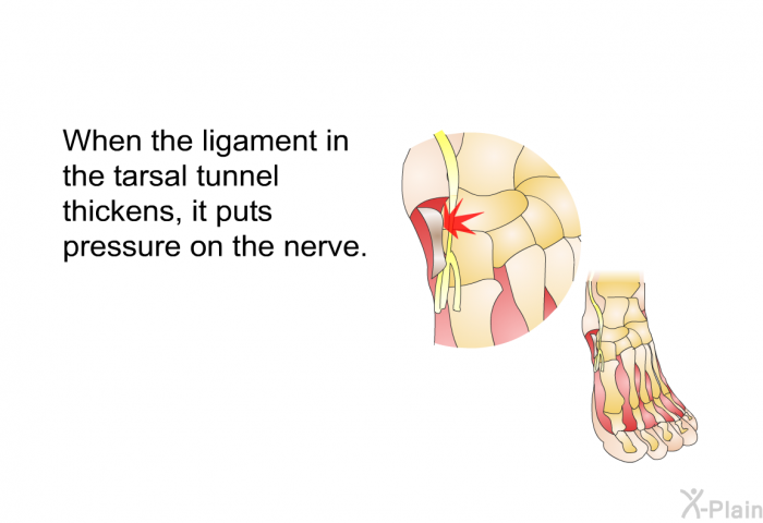 When the ligament in the tarsal tunnel thickens, it puts pressure on the nerve.